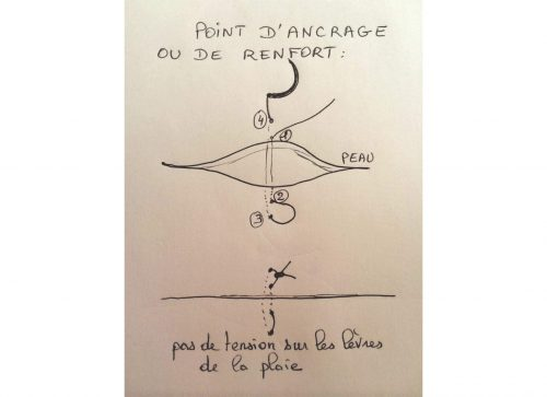 caudectomie point d'ancrage