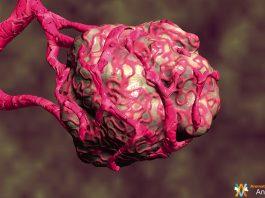 tumeur caudectomie